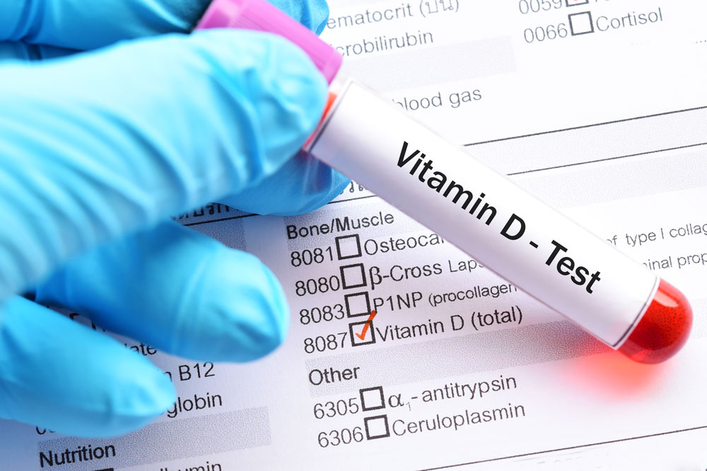 about vitamin d test
